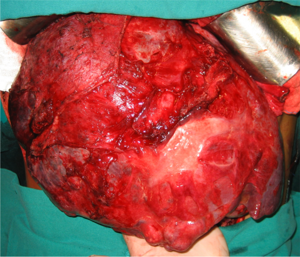 hepatocarcinoma_eduardo_ramos_14