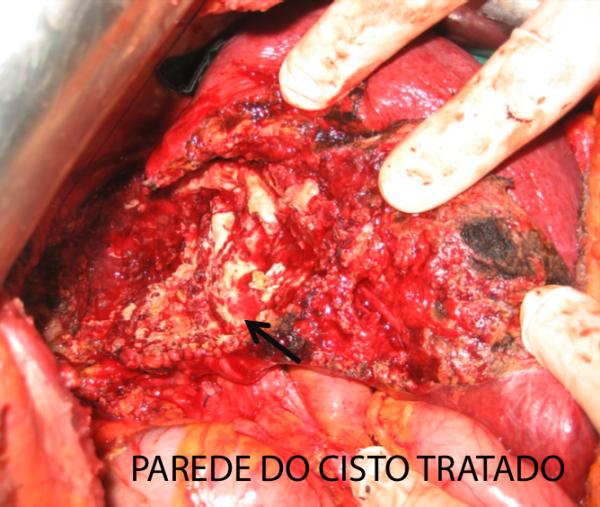 doenças_infecciosas_eduardo_ramos_12