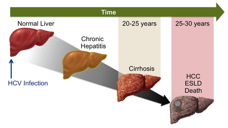 hepatite_dr_eduardo_ramos_9