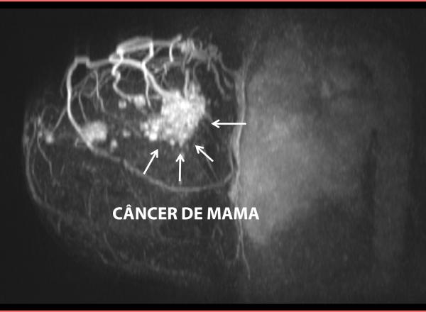 metastase_de_mama_eduardo_ramos_3