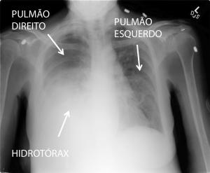 cirrose_dr_eduardo_ramos_8